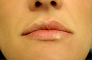 vitiligo_labios_antes